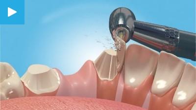 odsp dental fee guide 2015
